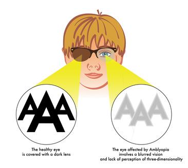 ambliopia (occhio pigro)